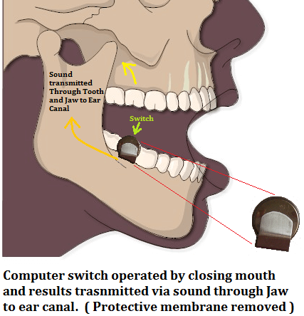 roulette computer hidden in the mouth